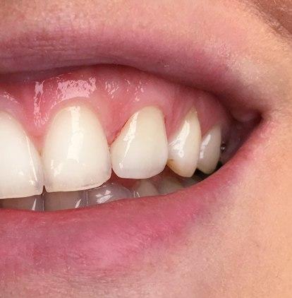 tandartsbehandeling na amsterdam