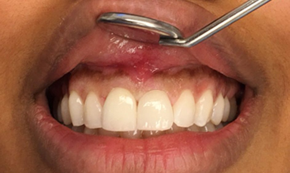 Cosmetische tandarts amsterdam